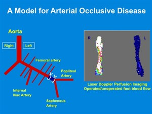 Arterial Occlusive Diseases And Arteriogenesis